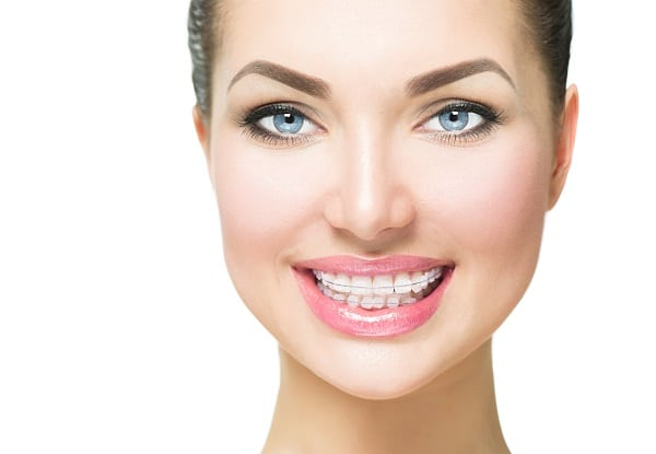 Ceramic braces for adults in Stapleton and Denver